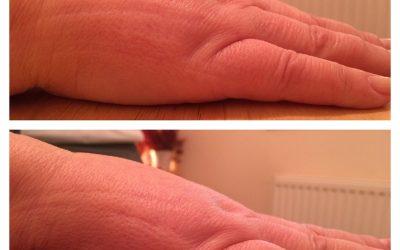 Reflexology Lymph Drainage